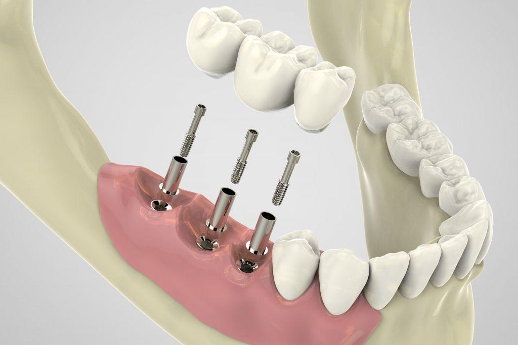 Имплантация зубов помогает многим людям жить полноценной жизнью