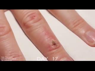 Наглядное видео о том, как заживает рана.