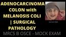 ADENOCARCINOMA COLON with MELANOSIS COLI | SURGICAL PATHOLOGY