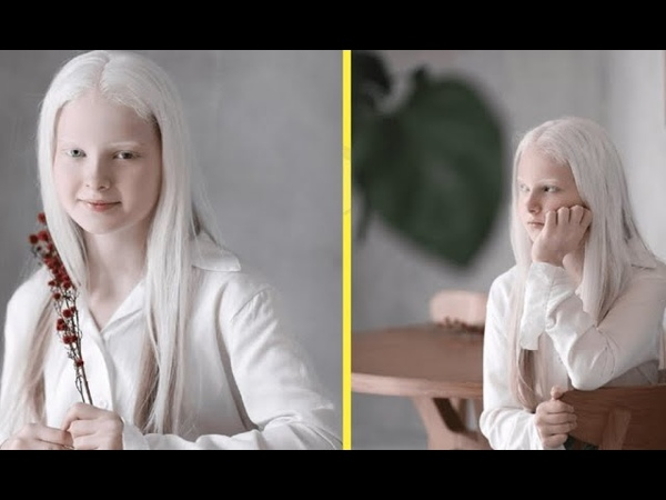 Чеченская школьница альбинос поразила людей своей необычной красотой восхищается весь мир