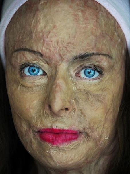 53-летняя бывшая королева красоты набралась смелости и показала свои жуткие шрамы. 20 лет назад ей пришлось выбираться из пожара вместе со своим маленьким сыном. Ребёнку повезло и он не