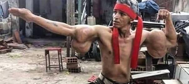 Синтоловый Рэмбо Йо, это фрик, которого окрестили Синтоловым Рэмбо. Сходства со Сталлоне у него ну такое себе, просто пациент любит разгуливать в красной бандане и камуфляжных штанах. Этот